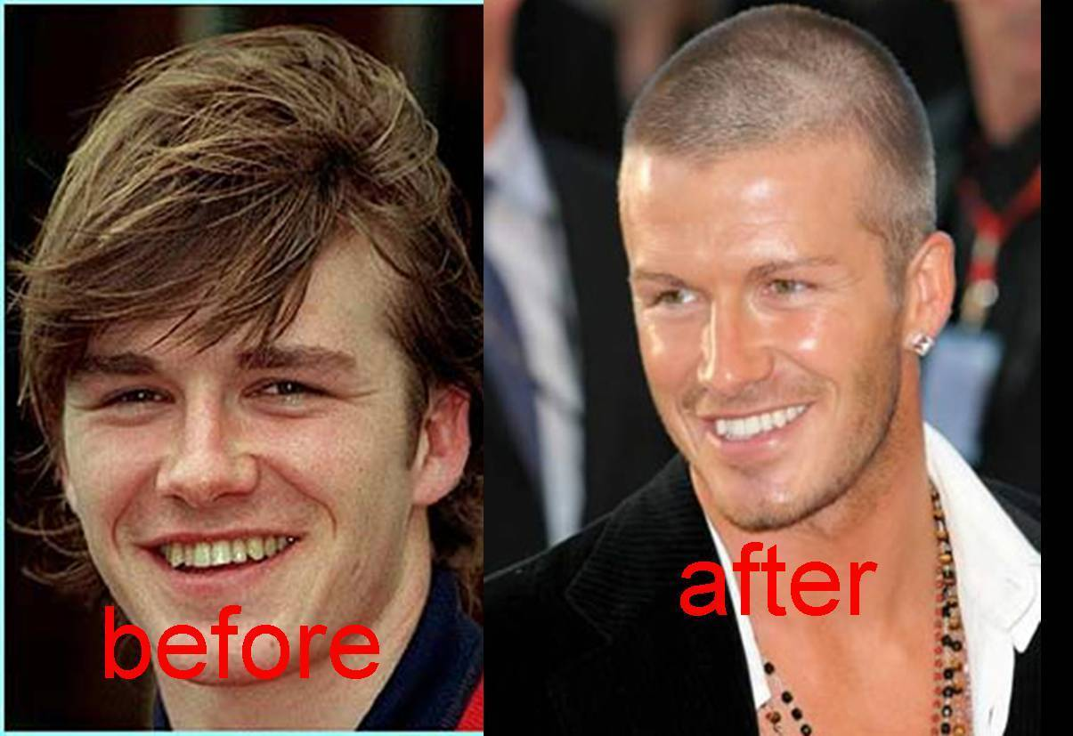 before and after david